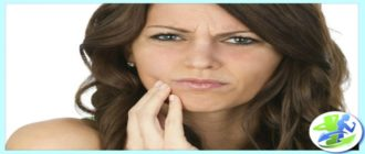 Как вылечить стоматит