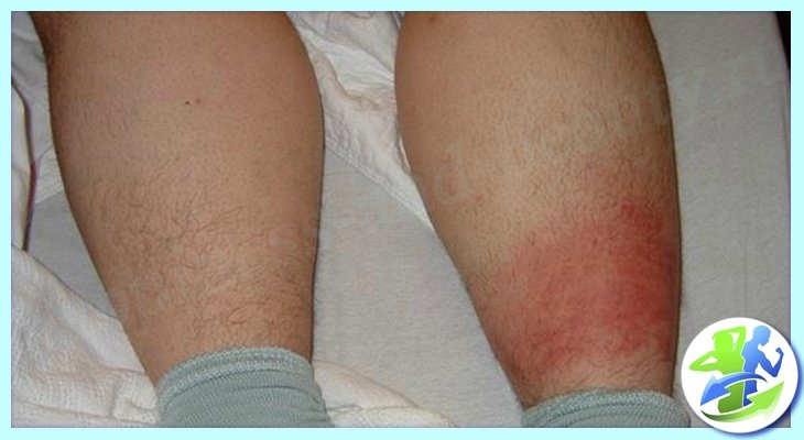 Рожистое воспаление на ноге