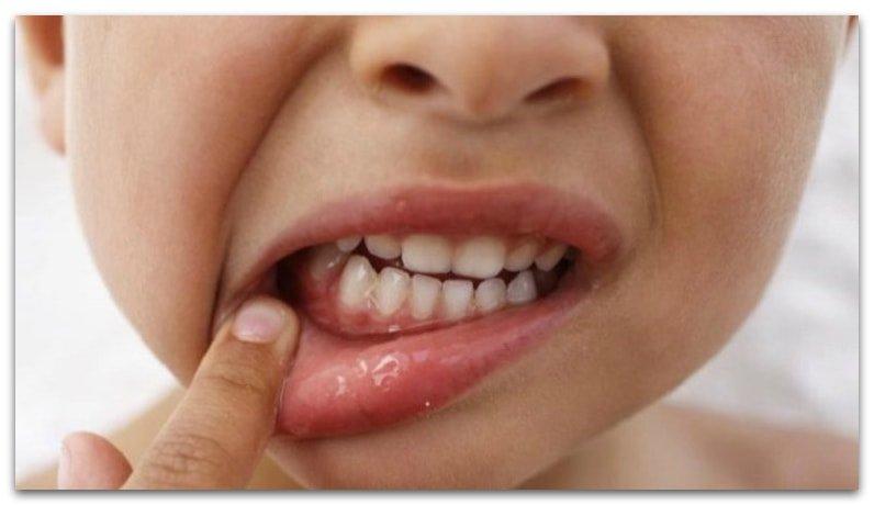 Как лечить воспалённые дёсна у ребёнка