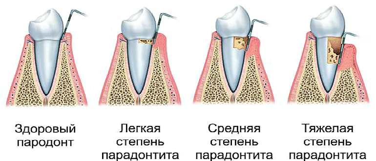 Степени болезни зубов