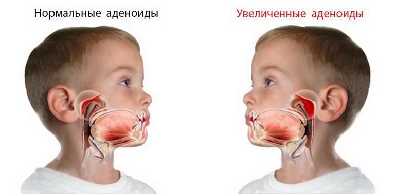 Нормальные и увеличенные аденоиды у детей