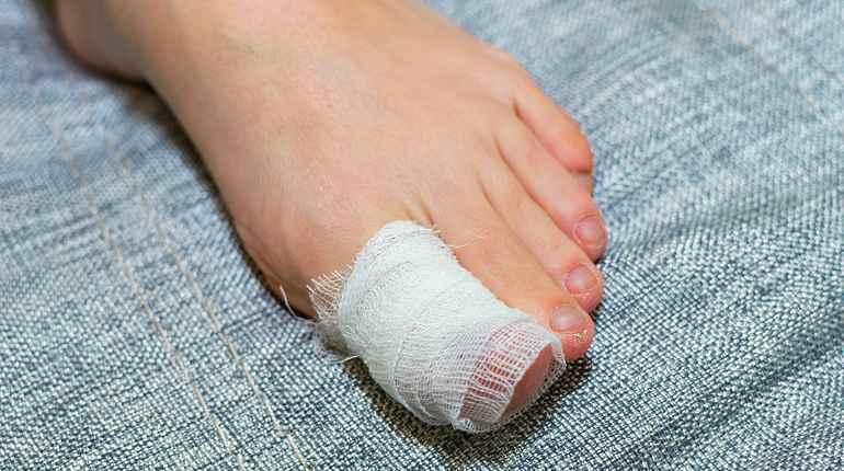 Гематома на пальце ноги
