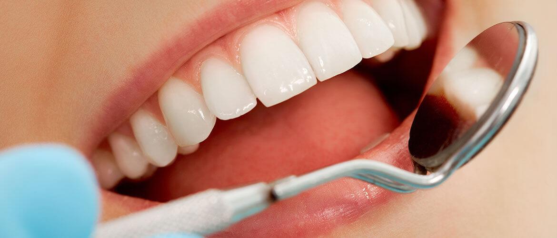 Здоровые десна и зубы